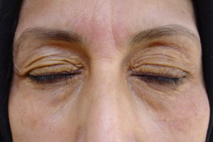 xanthelasma and excessive skin