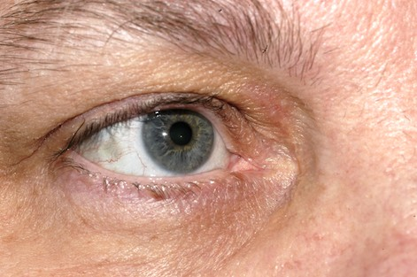 Eye after treatment with XanthRemover