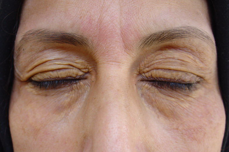 Xanthelasmas and excessive skin on the eyelid.
