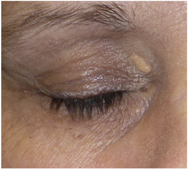 Small Xanthelasma