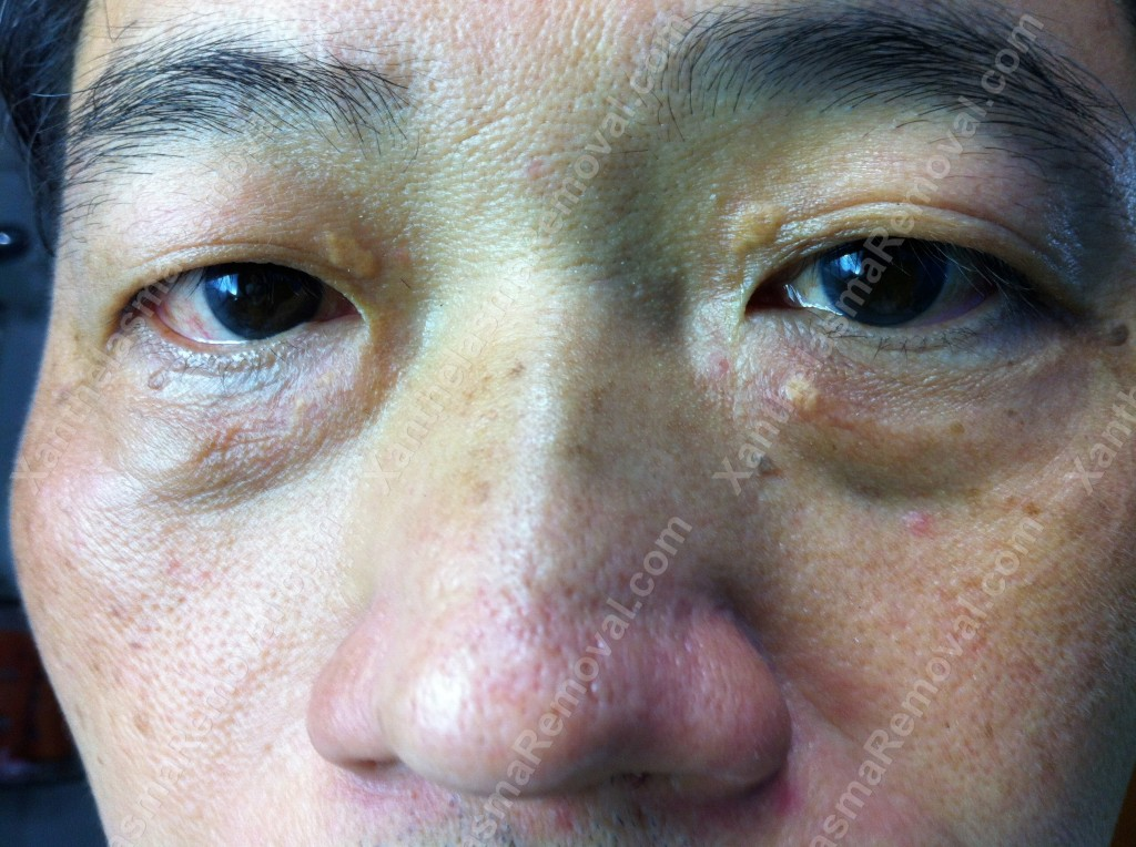 Xanthelasma Removed in Singapore