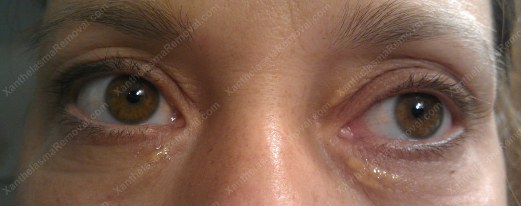 Self Application on the Xanthelasma
