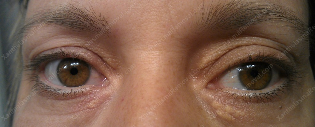 Xanthelasma As the Xanthemover had Just been wiped off