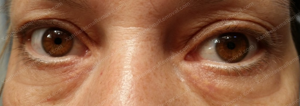 Xanthelasma Removed