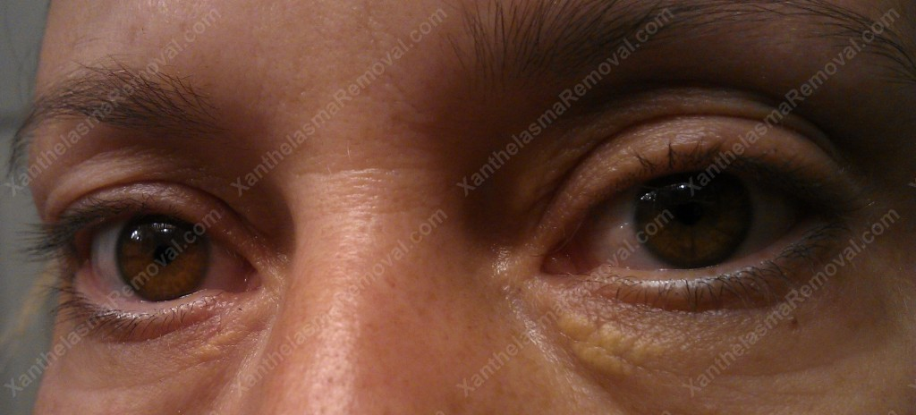 Xanthelasma Before, Angled Picture