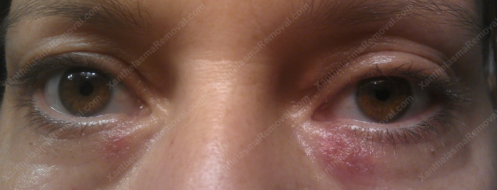 Xanthelasma One Day After the Ablation Using the XanthRemover