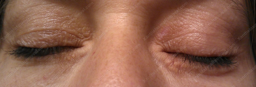 Xanthelasma 3 weeks after the ablation using the XanthRemover
