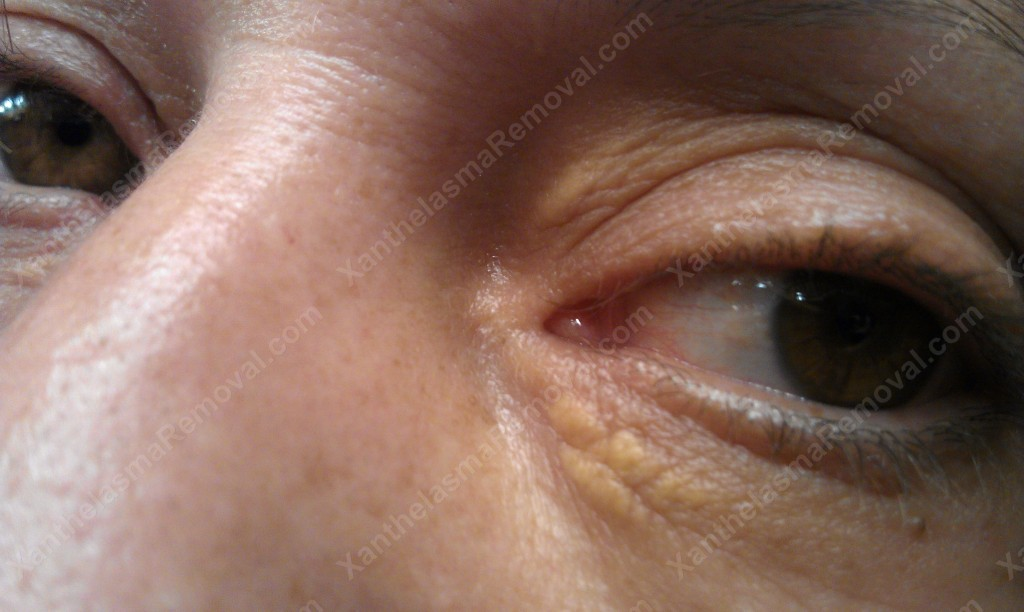 Two Xanthelasma on the Patient's Left eye
