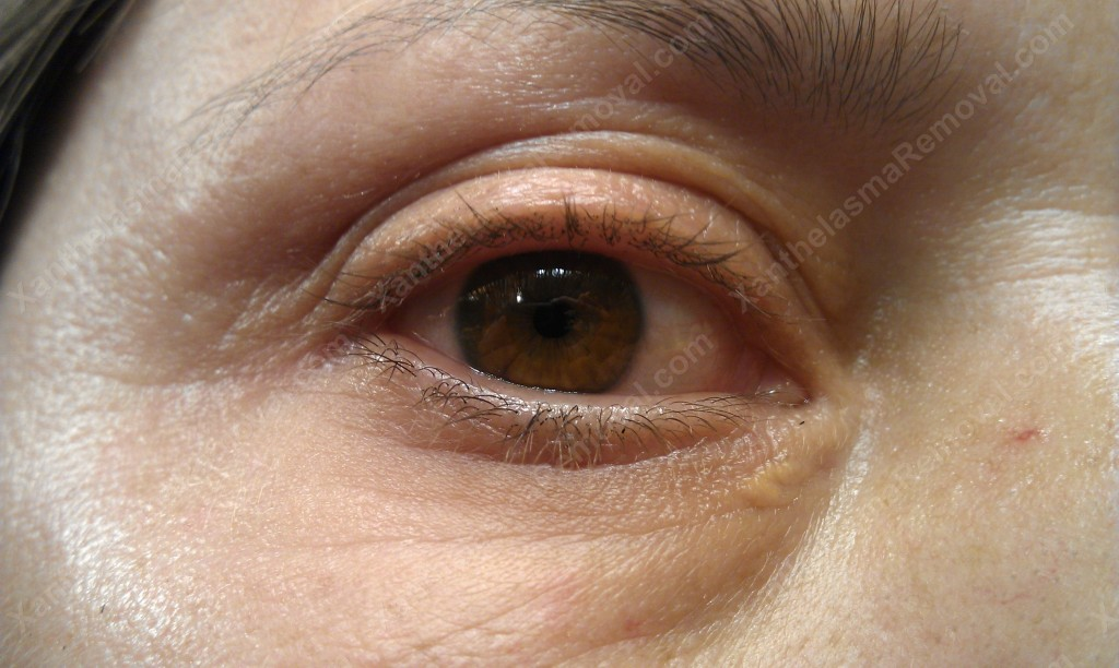 Very Small Xanthelasma on the Lower corner of the Right Eye