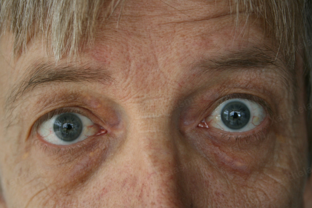 After Xanthelasma Removal