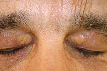 Myths about Xanthelasma Removal | Xanthelasma Removal