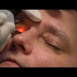 Laser Treatment for xanthelasma