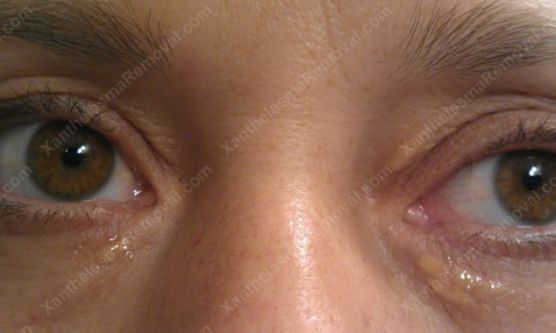 xanthelasma-eye5