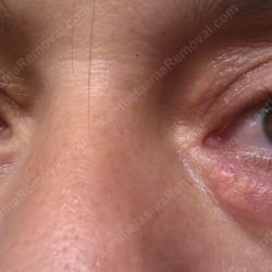 xanthelasma-eye7