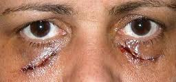 Surgical excisions Xanthelasma