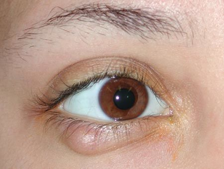 ophthalmology-chalazion-clinical-original