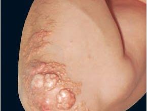 elbow-xanthoma