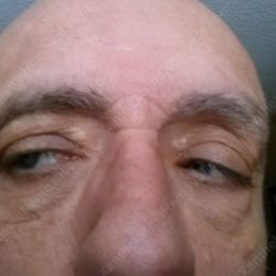 Images clear shows the the xanthelasma on eyes