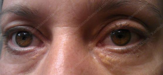 xanthelasma-eye
